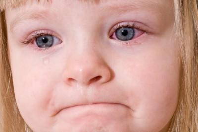 Воспаления глаз