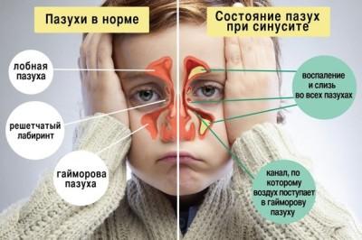 Гнойная инфекция и воспаление в носу